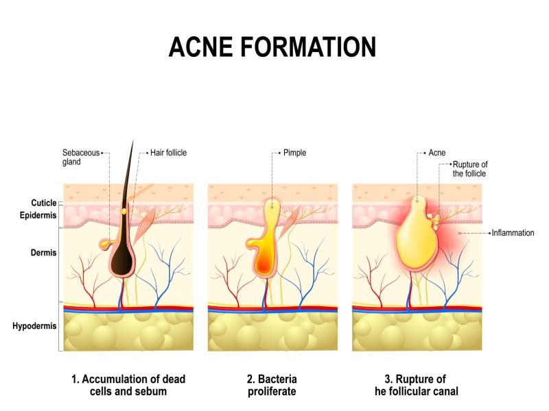 ontstaan acne
